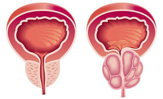 Milyen gyógyszer a prosztata adenoma masszírozására