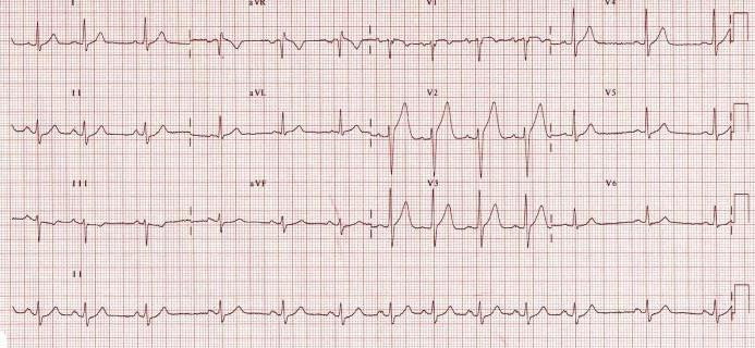 aritmija hipertenzijos fone)